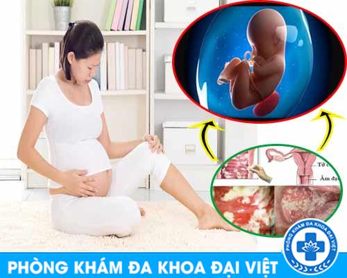 Mắc bệnh viêm phụ khoa có ảnh hưởng tới thai nhi không? - ĐA KHOA 3 THÁNG 2