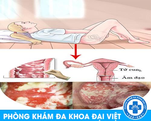 nam-phu-khoa-va-cach-dieu-tri-nam-phu-khoa-tot-nhat-tai-tphcm-2057