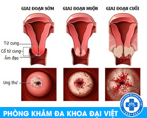Nhận biết và phương pháp điều trị viêm nhiễm phụ khoa an toàn nhất cho chị em- đa khoa 3 tháng 2