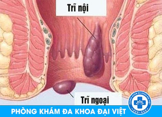 tri-noi-va-tri-ngoai-khac-nhau-cho-nao-111