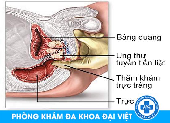 thu-pham-nao-gay-ra-ung-thu-tuyen-tien-liet-1368