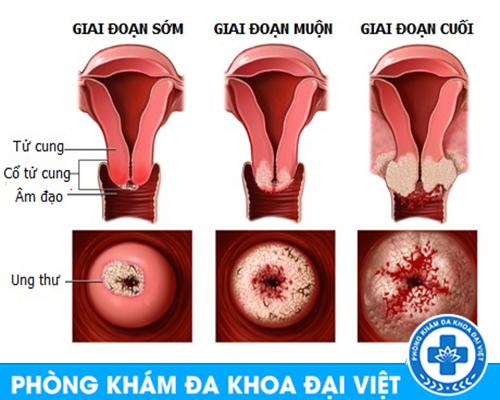 nhan-biet-va-phuong-phap-dieu-tri-viem-nhiem-phu-khoa-an-toan-nhat-cho-chi-em-2060