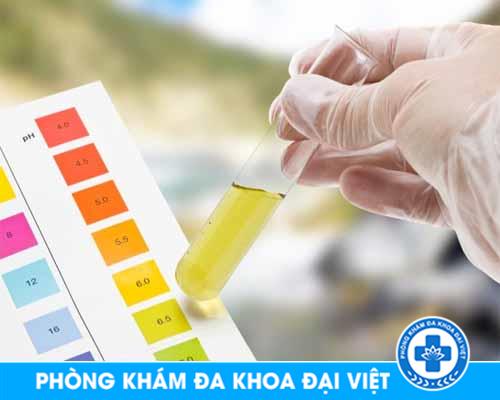 xét nghiệm nước tiếu - Đa khoa 3 tháng 2